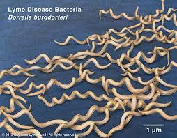 Lyme / Borrelia IgG och IgM Blot (Western) - Lyme / Borrelia IgG och IgM Blot (Western)