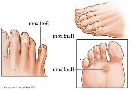 få bort förhårdnader på fötter
