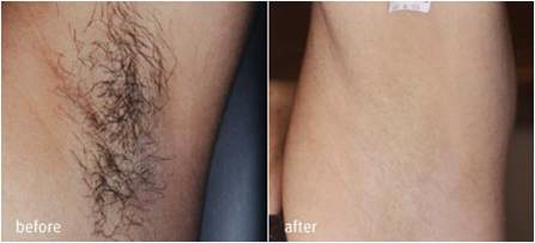 permanent hårborttagning kalmar