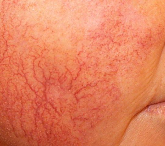 hudförändringar på bröstet