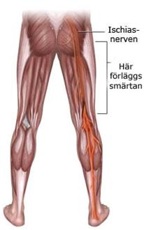 Ischais nervens utbredningsområde ner i benet.