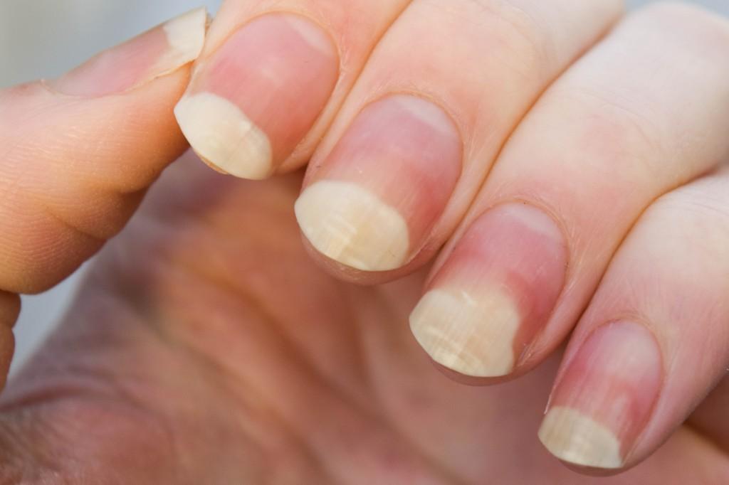 svamp på nageln