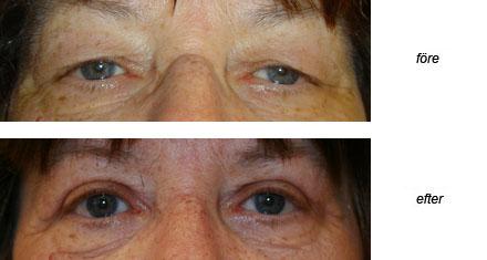 operera påsar under ögonen
