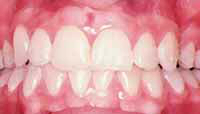 Friska tänder - friskt tandkött